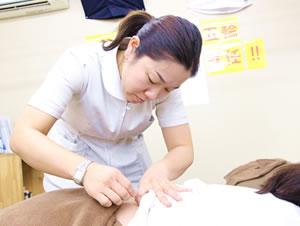 福岡市 堺整骨院グループの鍼灸施術風景