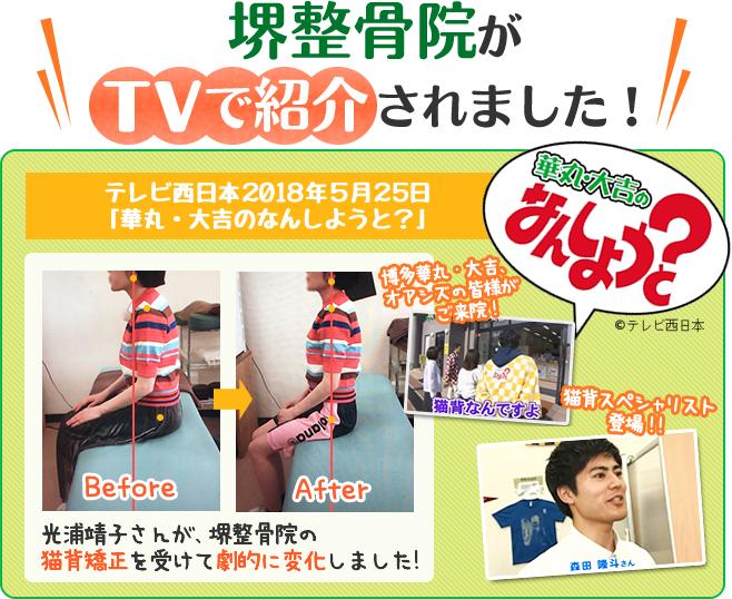 福岡市 堺整骨院の猫背矯正がテレビで紹介されました
